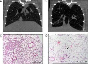 A) Tomografía axial computarizada de pulmón de ratón control. B) Tomografía axial computarizada de pulmón de ratón tratado con elastasa. C) Tinción de hematoxilina/eosina de pulmón de ratón control. D) Tinción de hematoxilina/eosina de pulmón de ratón tratado con elastasa. La flecha señala una zona del parénquima pulmonar en la que se aprecia un aumento del espacio interalveolar.
