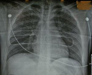 Radiografía del tórax de un donante en asistolia válido.