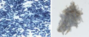 Material de punción-aspiración con aguja fina (PAAF) fijado en alcohol y teñido con Papanicolaou. Frotis muy celular con abundantes células sueltas. Las células son monótonas con núcleos ovalados y redondos, regulares, de cromatina granular sin nucléolo. Estudio inmunocitoquímico: cromogranina positiva (citoplasmática y granular).