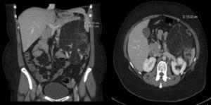 TC abdominal pretrasplante con gran masa heterogénea en el riñón izquierdo.