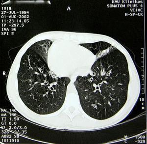 Tomografía computarizada torácica de la paciente a los 18 años de edad.