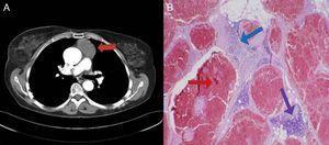 A) En la tomografía computarizada toracoabdominal se evidencia una masa de partes blandas prevascular (flecha roja). B) En el estudio anatomopatológico de la pieza quirúrgica se evidencian canales vasculares dilatados llenos de sangre y revestidos por endotelio plano sin atipias (flecha roja), septos fibrosos que atraviesan la lesión (flecha azul) y tejido tímico de aspecto normal en la periferia (flecha violeta), compatible con hemangioma cavernoso tímico.