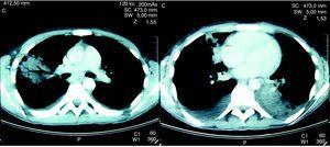 La tomografía computarizada torácica del paciente antes del tratamiento muestra tanto infiltrados pulmonares como derrames pleurales.