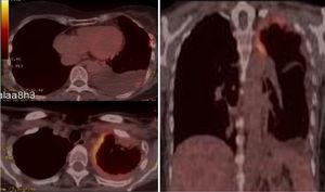 Imágenes de fusión de la PET-TC en la que se observan 2 focos de hipermetabolismo patológico en la zona apical pleural izquierda (SUV 6,8g/ml) y en la subpleural basal izquierda (SUV 3,8g/ml).