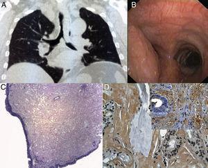La TC de tórax muestra: A) Una masa con una estenosis de la tráquea en la parte distal (longitud de 5cm) y del bronquio principal izquierdo. B) La visualización endoscópica muestra una masa que protruye de la pared lateral de la tráquea distal, causando una considerable oclusión de la tráquea y del orificio del bronquio principal izquierdo. C) La mucosa traqueal está engrosada por la presencia de una sustancia amorfa, a pesar de estar recubierta por un epitelio normal (tinción de hematoxilina y eosina, 40×). D) La sustancia amorfa se tiñe selectivamente con rojo Congo (400×). Recuadro: detección de amiloide P con el empleo de métodos inmunohistoquímicos (400×).