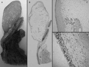 A,B)Neoformación polipoide con base de implantación en la pared bronquial (imagen macroscópica y microscópica). C)Neoplasia constituida por tejido adiposo maduro que engloba estructuras glandulares bronquiales. D)Epitelio de revestimiento de tipo respiratorio.