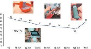 Provocación bronquial específica en el trabajo: la monitorización de la función pulmonar a lo largo de la actividad laboral evidencia una caída del FEV1 mayor del 20%. FEV1%: porcentaje respecto al predicho del volumen espiratorio forzado en el primer segundo; Post: FEV1 posbroncodilatador; Pre: FEV1 basal.