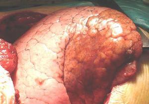 Imagen operatoria de la lesión situada en el lóbulo inferior del pulmón derecho.