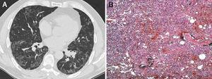 A) TCAR de tórax en la que se observa una borrosidad en vidrio esmerilado y una opacidad reticular periférica que se manifiestan especialmente en las bases pulmonares. B) El examen histopatológico mostró lo siguiente: tabiques alveolares ensanchados con proliferación de neumocitos tipo ii e infiltrado inflamatorio mononuclear con fibrosis intersticial en un patrón en parches (patchwork pattern) que sugería una neumonía intersticial usual (tinción de hematoxilina-eosina, aumentos originales 100×).