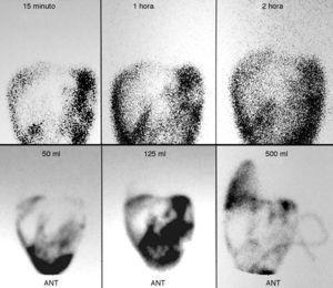 Gammagrafía peritoneal negativa para comunicación peritoneo-pleural. Proyecciones anteriores a los 15, 60 y 120min (superior). Gammagrafía peritoneal positiva para fuga peritoneo-pleural. Proyecciones anteriores a los 50, 125 y 500ml de solución de diálisis peritoneal (inferior).