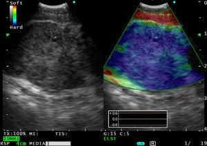 En el modoB se visualiza una adenopatía subcarinal de 20,7mm. La elastografía en tiempo real con ultrasonografía endoscópica con ecobroncoscopio (USE-B) indica una infiltración homogénea y completa de la adenopatía (color azul).