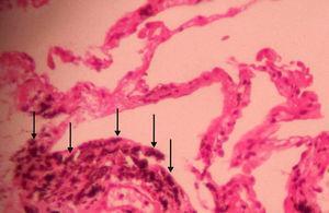 Corte de biopsia pulmonar transbronquial que muestra depósitos antracóticos (puntas de flecha) en haces peribroncovasculares, así como tabiques interlobulillares sin signos de fibrosis (tinción de hematoxilina y eosina, aumentos originales×400).