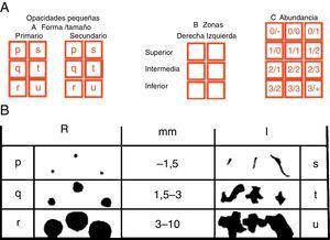 A)En la lectura ILO debe hacerse referencia a la forma y el tamaño de las lesiones expresado con 2 letras y a la profusión lesional expresada con 2 números. Así mismo hay que indicar en qué zona de cada pulmón asientan las lesiones. B)En la figura se identifican las pequeñas opacidades, tanto redondeadas (R) como irregulares (I), y su nomenclatura en función de su forma y tamaño.