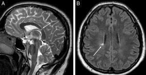RM de cráneo. Imagen sagital potenciada en T2 (A) en la que se observa una lesión focal hiperintensa en el esplenio del cuerpo calloso (flecha blanca). Imagen axial FLAIR (B) en la que se visualiza una lesión focal hiperintensa en la sustancia blanca periventricular (flecha blanca). Ambas lesiones son inespecíficas desde el punto de vista radiológico, pero en un contexto clínico adecuado compatibles con una enfermedad desmielinizante.