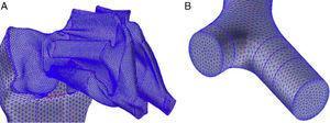 A)Detalle del mallado en las fosas nasales. B)Detalle del mallado en una de las bifurcaciones bronquiales.