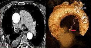 La arteria bronquial que nace entre la superficie convexa del arco aórtico y el límite con la aorta descendente, mostraba un aneurisma tortuoso e hipertrófico (flecha) en un hemomediastino extendido.