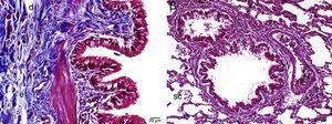 Examen histopatológico mediante microscopia óptica del tejido pulmonar en el grupo MI, tinción tricrómica de Masson. d: células en degeneración; e: edema; f: fibrosis; MI: grupo metotrexato+infliximab; sc: aspecto regular en los sacos alveolares.