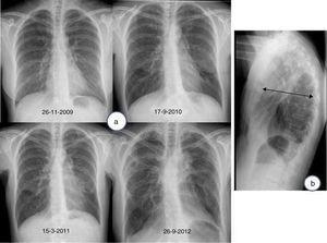 a) Radiografía de tórax (proyección postero-anterior): Evolución de un caso de fibroelastosis pleuropulmonar, caracterizada por una pérdida progresiva de volumen pulmonar a expensas de los lóbulos superiores, con una retracción ascendente de ambos hilios, así como por engrosamientos pleurales biapicales. b) Radiografía de tórax (proyección lateral): aplanamiento de la caja torácica&#59; obsérvese la disminución del diámetro anteroposterior de la caja torácica (flecha) en relación con el diámetro cráneo-caudal.