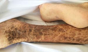 Fotografía de la cara posteromedial de la pierna derecha del paciente. Se observan las lesiones típicas de la ictiosis: una piel seca y áspera con escamas hiperpigmentadas de tonos amarronados, con bordes poligonales, libres e irregulares.