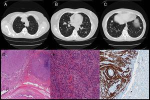 A-C) TAC torácica del LBM. D y E) Anatomía patológica de la biopsia pulmonar del LBM. F) Estudio inmunohistoquímico de desmina en la biopsia pulmonar del LBM.
