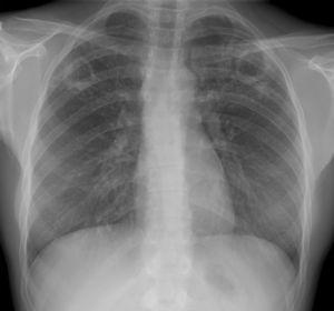 Radiografía con cavernas tuberculosas en ambos campos superiores.