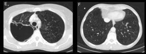 A y C) Cortes axiales de TC en ventana de mediastino y de pulmón respectivamente. Observamos una masa sólida de 6×4cm de bordes infiltrativos, con necrosis en su interior y realce periférico en segmento posterior del LSD adyacente a pleura posterior. B y D) Cortes axiales de TC en ventana de mediastino y de pulmón. Apreciamos otra lesión sólida en el LII adyacente a pleura diafragmática, de contornos infiltrativos, con menor necrosis. E y F) Cortes axiales de TC en ventana de pulmón, a los 6 meses del inicio del tratamiento con bevacizumab. En E vemos la lesión del LSD de mayor tamaño, cavitada y sin componente sólido, y en F la tumoración sólida del LII de menor tamaño y atenuación que en -B y -D).
