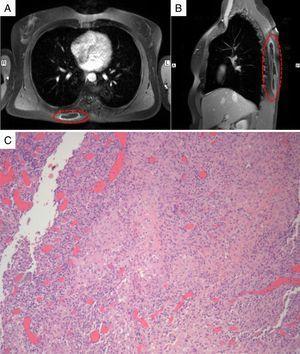 Imágenes axial (A) y sagital (B) de la resonancia magnética torácica en T1 que muestran una extensa lesión ocupante de espacio alojada en los músculos de la espalda, con aumento de contraste de la pared. C) En el estudio histopatológico se observa un extenso infiltrado inflamatorio mixto con numerosos histiocitos y áreas con granulomas epitelioides no necrotizantes.