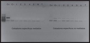 Amplificación de la región promotora del gen BMPR2 en células H1299. Los pocillos 1-6 corresponden al resultado de la amplificación de la PCR metilada específica y a la PCR no metilada específica de las réplicas de los cultivos celulares de H1299, los pocillos C+ corresponden a los controles metilados, los pocillos C− a los controles no metilados y los pocillos * a los blancos con H2O.