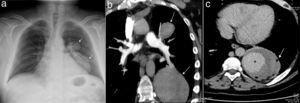 La radiografía de tórax mostró una opacidad localizada en la región hilar y paracardíaca izquierda (fig. 1a, flecha). La angiografía pulmonar por tomografía computarizada, reveló 2 lesiones emergentes de las ramas superior e inferior de la arteria pulmonar izquierda (fig. 1b, flecha). La repleción de contraste se realzó durante la fase tardía del estudio de imagen (fig. 1c, asterisco), observándose pequeñas burbujas de aire en la periferia de la lesión inferior (fig. 1c, flecha).