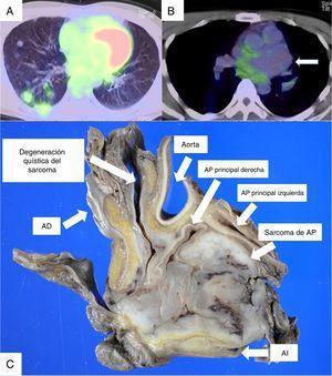 La PET/TC mostró la captación de FDG en múltiples nódulos pulmonares (A), pero no en el aneurisma de AP (B). La flecha indica el aneurisma de AP (B). Los hallazgos macroscópicos, de la muestra obtenida durante la autopsia, revelaron la presencia de un leiomiosarcoma de AP con degeneración quística (C). Leyenda de la figura C: Degeneración quística del sarcoma/Aorta/AP principal derecha/Sarcoma de AP/AI/AD. AD: aurícula derecha; AI: aurícula izquierda; AP: arteria pulmonar.