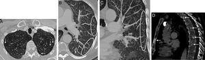 A) Imagen axial de la TC de tórax (ventana de parénquima pulmonar) en la que se observa un engrosamiento lineal del intersticio pulmonar subpleural (flechas). B) Reconstrucción axial MIP (proyección de máxima intensidad, ventana de parénquima pulmonar) del pulmón izquierdo en la que se observa un patrón de «árbol en brote» periférico consistente en opacidades lineales que se ramifican de predominio subpleural (ver dicho patrón en el interior de las elipses). Nótese también la presencia de pequeños nódulos centrolobulillares (flecha). C) Reconstrucción coronal MIP (ventana de parénquima pulmonar) del pulmón izquierdo en la que también se observa el patrón de «árbol en brote» en el interior de la elipse. D) Imagen sagital de la TC de tórax (ventana de hueso) en la que se visualizan múltiples lesiones focales óseas de predominio escleroso (flechas) en esternón y en varios cuerpos vertebrales, compatibles con metástasis óseas.