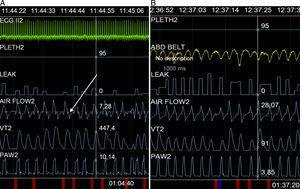 Captura de pantalla durante la adaptación de la ventilación. A) Puede observarse la deflexión mencionada en el texto (flecha), y B) Su desaparición con la programación de una rampa de desaceleración de 250ms.