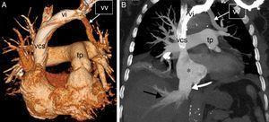 A) Reconstrucción 3D (volume rendering, en inglés) de la TC en la que se observa una vena vertical (vv), formada por la confluencia de las venas pulmonares del lóbulo superior izquierdo, que se dirige a la vena innominada (vi); tp: tronco de la arteria pulmonar; vcs: vena cava superior. B) Imagen de la TC coronal maximum intensity projection (MIP) en la que se aprecian signos de hipertensión pulmonar arterial/precapilar y de insuficiencia tricuspídea: dilatación de la aurícula derecha (asterisco), ingurgitación de la vena cava inferior (flecha blanca) y de las venas suprahepáticas (flecha negra). Nótese la vena vertical (vv), la vena innominada (vi) y la vena cava superior (vcs).
