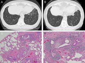Imagen de las tomografías computarizadas con espesor de corte fino practicadas a los 59 años (A) y a los 65 años (B) de edad, e imagen microscópica con tinción de hematoxilina-eosina (×40) (C) y (×100) (D).