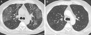 A) Tomografía computarizada torácica de alta resolución que evidencia opacidades en vidrio esmerilado bilaterales y engrosamiento de los septos interlobulillares. B) Tomografía computarizada torácica de alta resolución posterior al tratamiento con corticoides, en la que se observa resolución de las lesiones pulmonares.