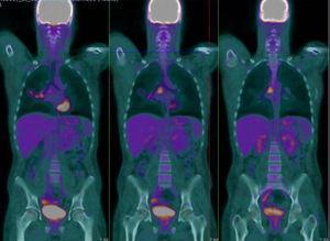 Focos hipermetabólicos sobre adenopatías subcarinales e hilio pulmonar derecho.