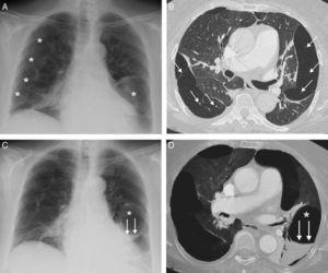 A) Radiografía de tórax en la que se observan múltiples formaciones quísticas subpleurales (asteriscos), en ambos pulmones. B) Imagen axial de la TC de tórax (ventana de pulmón) en la que se visualizan múltiples lesiones quísticas confluyentes en la periferia de ambos pulmones. Nótese la presencia de pequeños vasos pulmonares (flechas) que atraviesan las formaciones quísticas. C) Radiografía de tórax en la que se identifica la aparición de un nivel hidroaéreo (flechas) en una lesión quística de la base pulmonar izquierda (asterisco). D) Reconstrucción axial proyección de mínima intensidad (minIP), en la que se aprecia el nivel hidroaéreo (flechas) correspondiente al sangrado en el interior de una lesión quística (asterisco) del lóbulo inferior izquierdo.