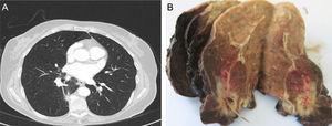 A) Condensación pulmonar heterogénea en el lóbulo inferior derecho, sin evidencia de lesión central, que se asocia a engrosamiento mural. B) Inflamación mixta aguda y crónica, focalmente abscesificante, asociada a cuerpo extraño (espina de pescado), con sobreinfección por Actinomyces, fibrosis y cambios reactivos perilesionales.