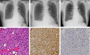 Imágenes de radiografía torácica durante la primera visita a nuestro servicio (A), 3 semanas después de la biopsia pleural (B) y 2 semanas después de la suspensión del dasatinib (C). Imagen microscópica con tinción de hematoxilina-eosina (D&#59; 200 aumentos) e imágenes microscópicas inmunohistoquímicas que muestran anticuerpos anti-CD68 (E&#59; 200 aumentos) y S-100 (F&#59; 200 aumentos).