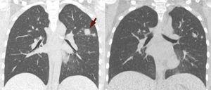 A) La TC inicial muestra nódulos con bordes mal definidos (flecha) predominantes en ambos lóbulos superiores. B) La TC de seguimiento, practicada 3 semanas después de iniciarse el tratamiento muestra cavitación de los nódulos previamente observados.