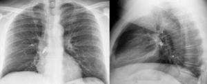 Radiografía de tórax posteroanterior y lateral, en la que se visualiza cuerpo extraño (bombilla) alojado en el bronquio principal derecho.