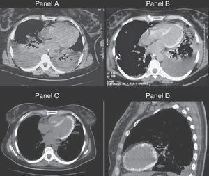 A) Tomografía de ingreso, que muestra la presencia de derrame pleural bilateral y consolidaciones pulmonares. B) Similar corte tomográfico realizado 7 días después, donde destaca el miocardio ventricular calcificado. C y D) Calcificación extensa de todo el miocardio ventricular izquierdo (día 30).