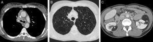 A) Imagen axial de la TC de tórax (ventana de mediastino), en la que se observa una masa central que engloba el bronquio principal derecho y la carina traqueal (asterisco). B) Imagen axial de la TC de tórax (ventana de parénquima pulmonar), en la que se identifican múltiples lesiones quísticas pulmonares de paredes finas distribuidas de forma difusa por ambos pulmones. C) Imagen axial de la TC de abdomen, en la que se aprecian múltiples tumores renales sólidos bilaterales de atenuación grasa (asteriscos) compatibles con angiomiolipomas.