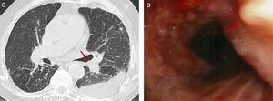 La tomografía axial computarizada (TAC) torácica (a) y la fibrobroncoscopia (b) muestran nódulos osteocartilaginosos en la pared anterior de la tráquea. En la TAC torácica también pueden observarse nódulos centrolobulillares y derrame pleural izquierdo (a).