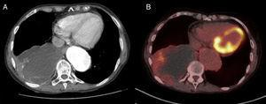 Computed tomography (CT) showing a 10.6cm mass in the right lower lobe with calcified walls, compatible with a bronchogenic cyst (A). PET-CT showing an ametabolic mass with mild increased uptake in the peripheral area (B).