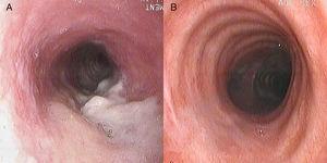Imagen endoscópica de la tráquea. A) Se observa un engrosamiento difuso de la pared de la tráquea con una lesión necrótica. B) Resolución de las lesiones con el tratamiento antituberculoso.