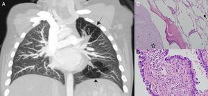 (A) Contrast-enhanced, coronal plane, chest computed tomography. Closed arrows show mucoceles and black arrows show air-trapped segments. (B) Haematoxylin–eosin, ×100 magnification. The air trapping areas (open arrow) and mucocele (asterix), confirming bronchial atresia. (C) Haematoxylin–eosin, ×400 magnification. CPAM areas (closed arrow) showed by respiratory epithelial lined cysts and a thin fibromuscular layer in the cyst wall.