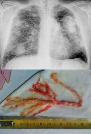 a) Patrón intersticial con conglomerados bilaterales&#59; b) Molde bronquial expectorado.
