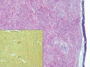 En la imagen se aprecia una tumoración fusocelular fasciculada subepitelial sin necrosis ni actividad mitótica (H&E ×4) que expresa inmunotinción positiva para actina de músculo liso (imagen inferior, AML ×10).
