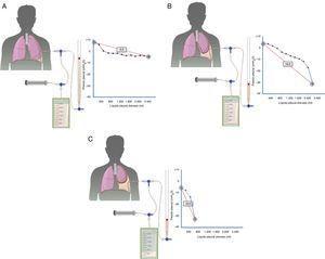Curvas obtenidas por manometría, con su valor de elastancia, en un pulmón normal (A), en un pulmón en proceso de atrapamiento (B) y en un pulmón atrapado (C). En un derrame pleural con un pulmón normal (A) la presión pleural inicial será ligeramente positiva. A medida que se aspira líquido, la presión pleural descenderá lentamente y el pulmón se irá expandiendo progresivamente. Una vez retirado todo el derrame, el pulmón contactará con la pared torácica y la elastancia obtenida será normal. En el pulmón en proceso de atrapamiento (B) la pleura visceral tendrá un ligero engrosamiento y la presión pleural inicial será, como en el pulmón normal, ligeramente positiva. Al retirar líquido, en un principio, el pulmón se expandirá progresivamente y la presión pleural descenderá lentamente. Llegado un punto el pulmón queda atrapado, no se puede expandir más y la presión caerá rápidamente dando lugar a una elastancia elevada, con una curva presión/volumen bimodal. En el pulmón atrapado la pleura visceral tiene una capa de fibrina más gruesa que impide que el pulmón se expanda, por lo que la presión inicial será negativa (C). La retirada de líquido, por un lado, y la rigidez del pulmón, por otro, provocarán un rápido descenso de la presión pleural y dará lugar a una elastancia elevada.
